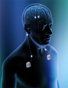 Deep-brain-stimulation